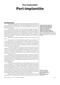 Periodontia X Implante, Notas de estudo de Odontologia