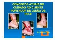 Conceitos Atuais no Cuidado ao Paciente Portador de Lesao de Pele, Notas de estudo de Cultura