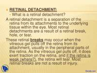 Retinal Detachment - Introduction to Ophthalmology - Lecture Slides