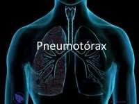 Pneumotórax - Apostilas - Pneumologia_Parte1
