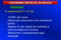 Câncer de Bexiga - Apostilas - urologia_Parte3