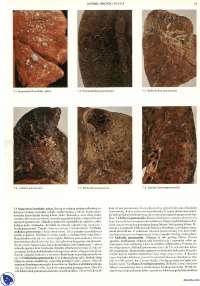 Dusnik bronh i pluca-Skripta-Patologija-Medicina