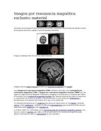 Imagen por resonancia magnética exclusivo material