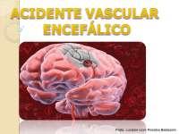Aula sobre Acidente Vascular Encefálico