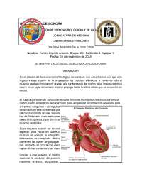 Lectura de electrocardiograma