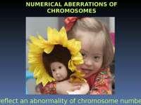 numericke aberacije genetika