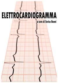 Guida elettrocardiogramma