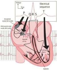 Электро кардиограмма