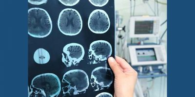 7 cosas que debes conocer de los accidentes cerebrovasculares (ACV)