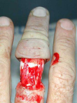 Lesiones-degloving-medicina-docsity