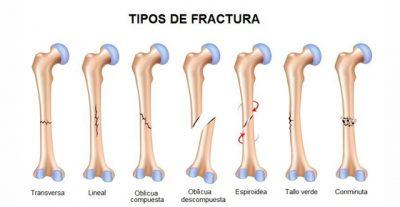 Los tipos de fracturas que un estudiante de medicina debe conocer