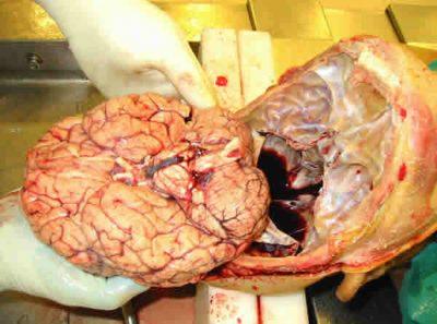 13 pasos que debes conocer para realizar la autopsia neuropatológica