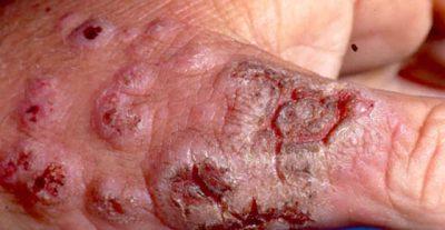 Qué debe saber un estudiante de medicina sobre la esporotricosis