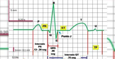 Estudiante de medicina como interpretar un electrocardiograma