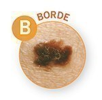significado letra b en test abcde para dermatologia