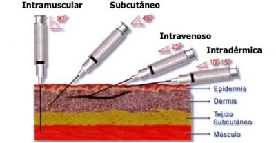 4 tipos de inyecciones que el estudiante de medicina debe conocer